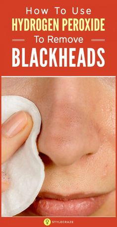 Wash face with mild cleanser Exfoliate with face scrub Use hydrogen peroxide and cotton ball to treat blackheads, avoid eyebrows and hairline Blackhead Remedies, Blackhead Remover, Blackhead Scrub, Hydrogen Peroxide Skin, Exfoliating Face Scrub, Natural Cold Remedies, Get Rid Of Blackheads, Removal Of Blackheads, Skin Care