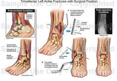 Trimalleolar Left Ankle Fractures with Surgical Fixation. Why I'm sitting in a rehab center. I need to heal fast to finish closing in my little home before the weather changes!