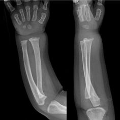 Pin by Ian Bickle on Radiology for Clinicians | Radiology, Radiology imaging, Medical