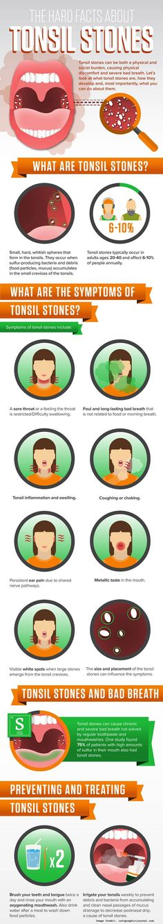 Tonsil Stones – What Is It And Top 10 Natural Treatment Options
