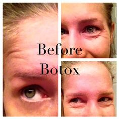 #Botox is always in our Top 5 favorite products!  This blogger shares her 'addiction' and the reasons behind it.  Great story!