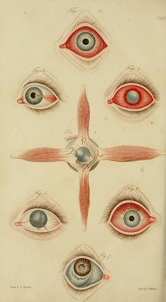 A synopsis of the diseases of the eye and their treatment to which are prefixed, a short anatomical description and a sketch of the physiology of that organ, Benjamin Travers, 1824  Fig 1. Muscular branches of ophthalmic artery  Fig 2. Acute inflammation of conjunctiva  Fig 3. Ulcer of cornea  Fig 4. Strumous nebula with vessels overshooting the cornea.  Fig 5. Chronic inflammation with vascular cornea  Fig 6. Aphthous pustular inflammation of conjunctiva  Fig 7. Blue tumor of the sclerotica