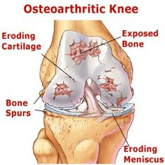 Natural Treatments For Osteoarthritis
