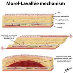 Morel-Lavallée lesions are closed degloving injuries associated with severe trauma which then present as hemolymphatic masses. MRI and ultrasound are useful modalities for evaluation. Terminology The lesions classically occur over the greater t. Deep Fascia, Ultrasound, Human Body, Trauma, Illustrations, Surgery, Articles, Presents, Education
