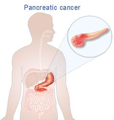 Dr. Pradeep Jain – What is Pancreatic #Cancer? #drpradeepjain #news