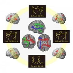 Agrammatism is a disorder of syntactic processes in the brain. Four visual stimuli used in a picture-sentence matching task, differential activation patterns for the normal group and three patient groups, and perspective drawings of the three syntax-related networks (red, green, and blue) are shown. © Sakai Lab. #UTokyoResearch
