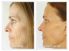 Reduce the appearance of wrinkles