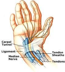 Carpal Tunnel Syndrome is a progressive pain in the wrist, hand and arm caused by a pinched nerve wrist. Carpal Tunnel Syndrome occurs when the median nerve, which runs from the forearm into the palm of the hand, becomes pressed or squeezed at the wrist. Carpel Tunnel Syndrome, Carpal Tunnel Relief, Tendinitis, Pain Relief Patches, Median Nerve, Sport Fitness, Crohns, Essential Oil Uses, Carpal Tunnel
