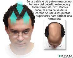Hierbas para el crecimiento del cabello - Remedios herbarios para la pérdida del pelo   TERAPIAS ALTERNATIVAS