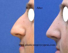 Correction of the nose http://www.plasticsurgery4cyprus.com/page/el/22/rhinoplasty