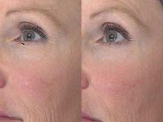 PRP Skin Rejuvenation | SkinSpirit Skincare Clinic and Spa