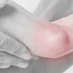 10 Best Plantar Fasciitis Exercises | Stretches and Strengthening — Feet&Feet What Is Plantar Fasciitis, Plantar Fasciitis Exercises, Heel Pain, Foot Pain, Foot Exercises, Stretches, Fallen Arches, Flat Feet, Bunion