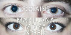 EYES ON DRUGS ... VICE visited a nightclub in Berlin and photographed close-up images of people's eyeballs while they were under certain er, illegal (and some legal) substances to see it you can tell what drug they're on by the size of their pupils.
