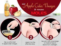 Apple cider vinegar remedy to get rid of a mole