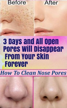 3 Days and All Open Pores Will Disappear From Your Skin Forever. 3 Days and All Open Pores Will Disappear From Your Skin Forever. Clean Nose Pores, Clean Face, Open Pores On Face, Beauty Care, Beauty Skin, Health And Beauty, Beauty Hacks, Healthy Beauty, Healthy Aging