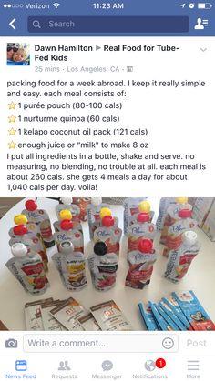 Elsie's feeding tube Feeding Tube, Bottle Feeding, Peg Tube, Kidney Friendly Foods, Medical Anatomy, Cerebral Palsy, Special Needs Kids, Survival Tips, Nutrition