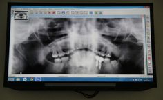 radiografia de #implantesdentales en Tot Dental tu #clínica #dental