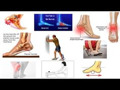 ce3de83708 Correct Plantar Fasciitis Quickly! (Medically Proven) The Best Exercises &  Stretches - Dr Mandell