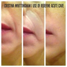 Eeek! Check out these amazing results from our new Rodan + Fields product, Redefine Acute Care! The unbelievable before/after photos just keep rolling in! You truly can fill your wrinkles while you sleep, no risk, no needles! Only Rodan + Fields has this technology right now, and you can only get the product through one of our consultants. http://ecaughman.myrandf.com