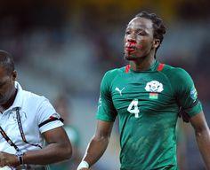 bakary kone with bleeding nose, africa cup 2013, burkina faso