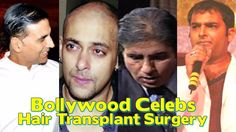 12 Bollywood actors who underwent hair transplant surgery
