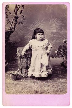 """Dwarf Fat Lady"" Sophia Schultz"