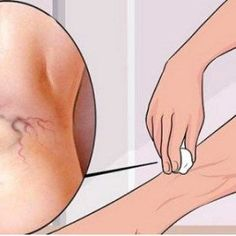 Every single woman on Earth despises varicose veins as they make legs extremely unattractive. Moreover, they also cause pain and discomfort. However, we will reveal a natural way to get rid of varicose veins almost instantly! Home Remedies For Sinus, Sinus Infection Remedies, Natural Home Remedies, Varicose Vein Removal, Varicose Vein Remedy, Varicose Veins, Get Rid Of Spider Veins, Get Rid Of Spiders, Cypress Oil