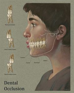 Dentaltown - Dental Occlusion Classifications