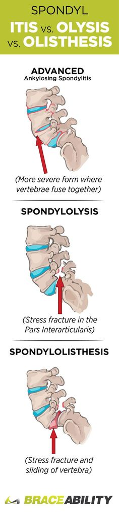 What's the difference between spondylitis, spondylolysis, & spondylolisthesis? Read more to help differentiate between these three spinal conditions.   BraceAbility