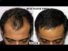 Hair is a striking feature of human body. Hair loss, especially by female/male pattern baldness is matter of great concern. Pattern baldness is particularly is very troubling condition. In this type of baldness the hair [. Hair Loss Causes, Anti Hair Loss, Stop Hair Loss, Prevent Hair Loss, Vitamins For Hair Loss, Male Pattern Baldness, Regrow Hair, Hair Loss Women, Hair