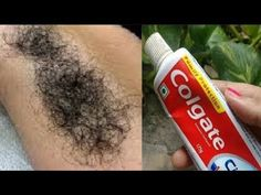 Best how to remove hair with toothpaste 29 Ideas Removing Facial Hair Women, Female Facial Hair, Facial Hair Growth, Upper Lip Hair Removal, Hair Removal Diy, Anti Aging, Colgate Toothpaste, Hair Removal Machine, Dental