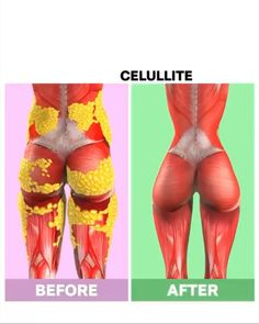 To get rid of cellulite you have to complete the right workouts in the right way. Cellulite occurs when you have too much body fat and not enough muscles. Kill cellulite and build muscles with these workouts from FitonomyApp. Fitness Workouts, Gym Workout Videos, Gym Workout For Beginners, Fitness Workout For Women, Sport Fitness, Easy Workouts, Full Body Gym Workout, Lower Belly Workout, Butt Workout