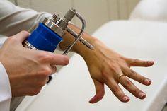 Crioterapia con Nitrógeno Líquido