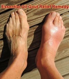 Essential Oil Gout Relief Remedy  - Homesteading  - The Homestead Survival .Com