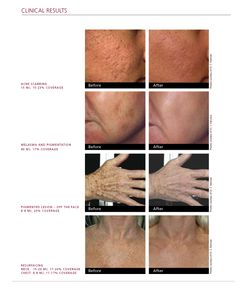 Vitality offers Fraxel Laser Resurfacing for fine lines wrinkles and age spots.