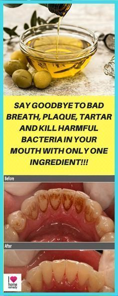 Say Goodbye To Bad Breath, Plaque, Tartar And Kill Harmful Bacteria In Your Mouth With Only One Ingredient - Home Health Natural Home Remedies, Herbal Remedies, Health Remedies, Acne Remedies, Holistic Remedies, Health Tips For Women, Health Advice, Autogenic Training, Healing Oils