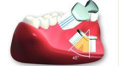 Setzen Sie die Zahnbürste in einem Winkel von 45 Grad an und rütteln Sie von Zahn zu Zahn. Danach wird von rot nach weiß ausgefegt.