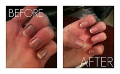 Such an easy fix for polish stained nails