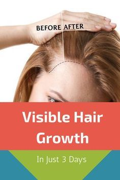 Visible Hair Growth In Just 3 Days, Try This Hair Mask hairmasks masks hairgrowth naturalhair diyhair hairgoals diyremedies hairgrowthremedies 563018690293715