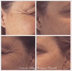 My beautiful client received anti wrinkle treatment to her crows feet to create ...