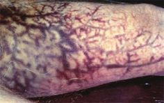 36 to 48 hours after death, a process called 'marbling' begins. During this process parts of the body such as thighs, arms, shoulders and chest show long purple to greenish colored streaks. These streaks are distended veins, caused by bacteria tracking though the superficial blood vessels causing pigment changes in the blood.