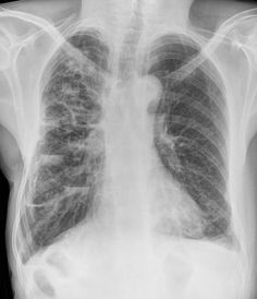 Cystic bronchiectasis | Radiology Case | Radiopaedia.org