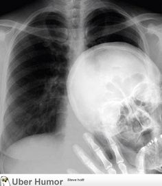 Photo bombing a chest x-ray.