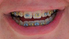 Multi Colors Braces For Teeth