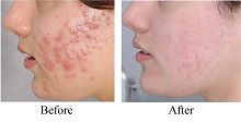 Acne massage is a popular form of treating adult acne holistically. Many women are seeing great results by following this holistic acne treatment. Massaging the face and certain points on the body to reduce acne breakouts can also be done at home as a self care preventive acne remedy. Alternatively, one could even seek help …