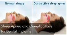 Sleep Apnea and Complications for Dental Implants Read here: http://www.orchardscottsdental.com/sleep-apnea-and-complications-for-dental-implants/ . More About Invisalign: http://www.orchardscottsdental.com/servicesby/invisalign/ and visit our website at http://www.orchardscottsdental.com