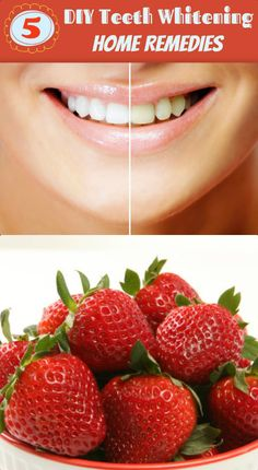 5 #DIY #TeethWhitening Home Remedies That can Actually Make Your Teeth Sparkling White !