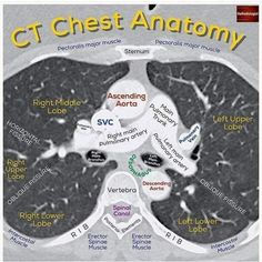 Swipe left for a recap on posts of CT chest anatomy.    Before getting into the anatomy it is important to understand the basics of… Examen Clinique, Radiology Student, Nursing School Notes, Medical School, Critical Care Nursing, Cardiac Nursing, Respiratory Therapy, Medical Anatomy, Medical Information