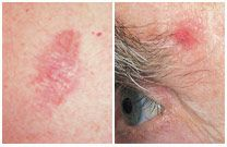 Learn the warning signs and view images to see what basal cell carcinoma looks like, to help you detect skin cancer early, when it's easiest to treat. Basil Cell Carcinoma, Cancerous Moles, Granuloma Annulare, Skin Cancer Treatment, Basal Cell, Look Dark, Skin Spots, Cancer Fighting Foods, Warning Signs