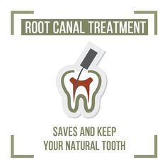 Root canals are good options for many as they will preserve the natural tooth. If you need a root canal, Dr. Kimsey is happy to walk through the process with you and help to reduce your dental anxiety. Tooth Extraction Aftercare, Tooth Extraction Healing, Dental Jokes, Dental Facts, Teeth Health, Oral Health, Holistic Dentist, Implant Dentistry, Root Canal Treatment